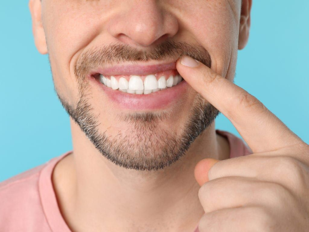 Man showing the results of his cosmetic orthodontics